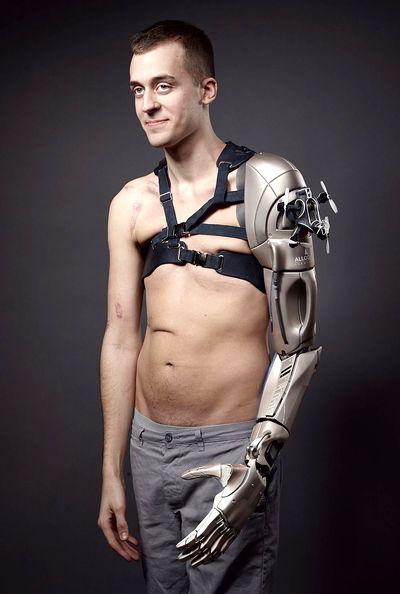 Британец получил искуственную руку, спроектированную по игре Metal Gear Solid
