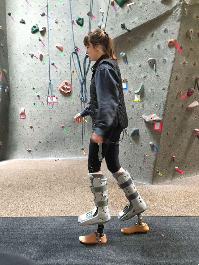 Испытание протеза ступни «Prominence»